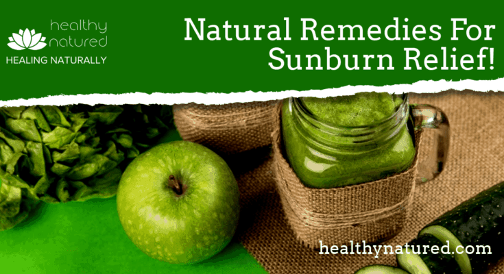 how Do I Treat Sunburn Naturally