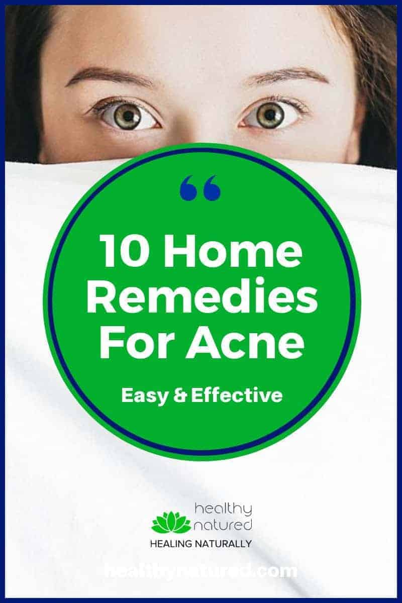 10 Best Home Remedies For Acne And Spots (Discover The Most Effective)