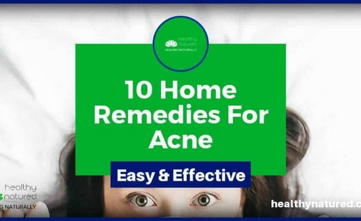 10 best home remedies for acne and spots